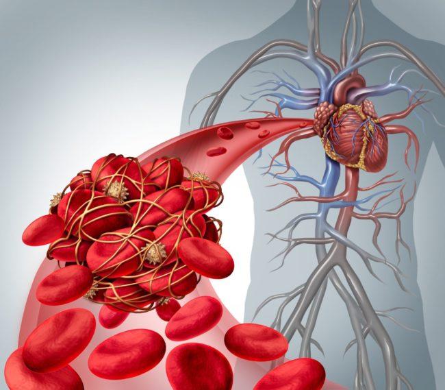 Valutazione Genetica del Rischio di Trombosi